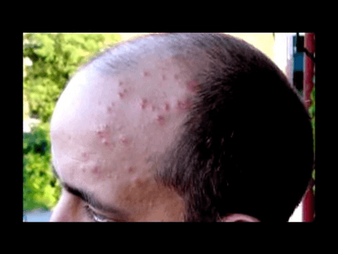 What Are Bed Bugs Bites Dangerous For Treatment And Prevention