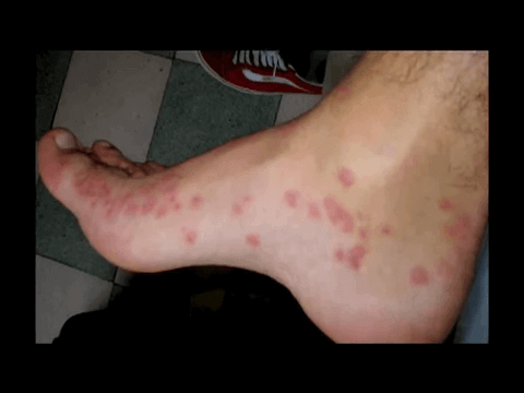 what are bed bugs bites dangerous for: treatment and prevention