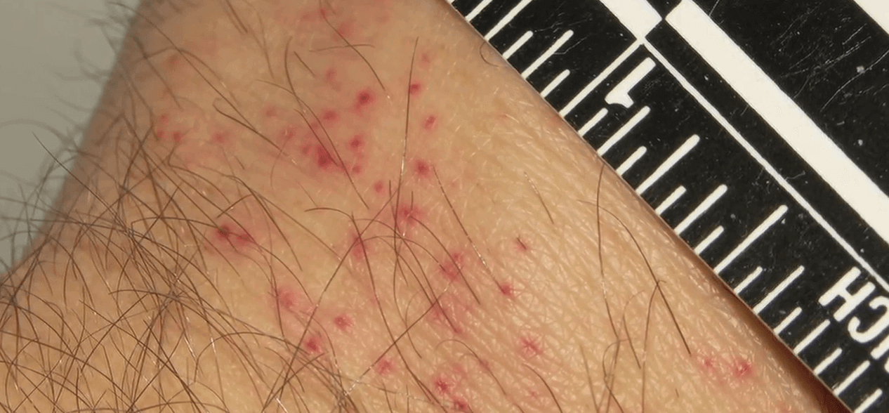 bed bug bites treatment and prevention bedding sets