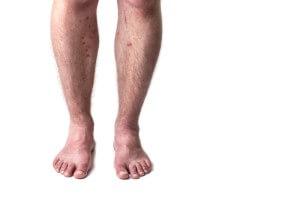 Bed bugs rash
