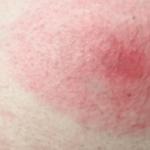 Flea Bites Allergy
