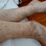 Human Legs after flea bites