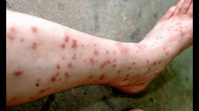 Pictures Of Flea Bites On Humans Symptoms And Treatments